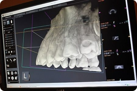 Over 65+ years of combined experience in dental implant placement