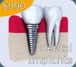 $2990 Dental Implant Special