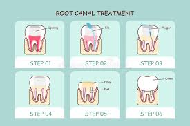 Steps of a typical Root Canal